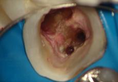 下顎の大臼歯の根尖部を歯の内部から見た写真