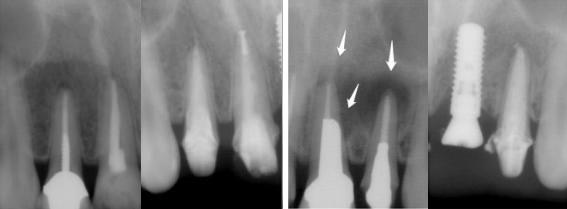 4本の前歯の治療が終わった後の状態