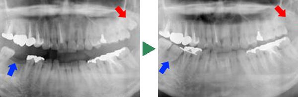 移植前と移植後のレントゲン写真