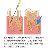 マイクロスコープを使用した治療の一例