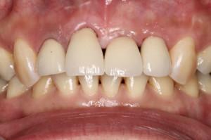 余剰のセメントを除去したばかりですので歯茎にやや出血が見られます